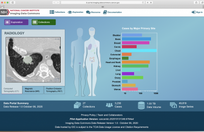 Imaging Data Commons website portal featuring a radiology image and a graph chart, Cases by Major Primary Site. Chest has the most, then brain, head and neck, breast.